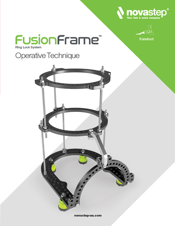 FusionFrame Operative Technique